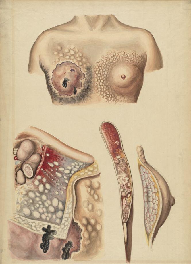 История в лечението на заболявания на млечната жлеза